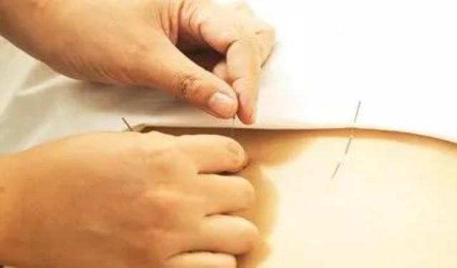 中育为-[培训师]毫刃针筋膜快速无痛松解疗法治疗颈肩腰腿痛临床技术精品推广班